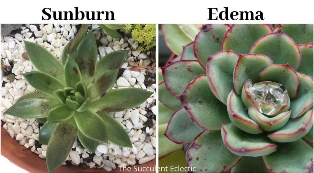Succulent edema compared to succulent sunburn